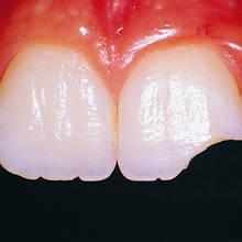 Co zrobić, gdy w czasie pobytu na wakacjach ukruszy ci się ząb?