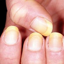 W jaki sposób wybielić żółte paznokcie?