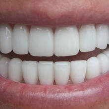 Jak skutecznie wybielić zęby?