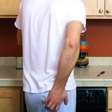 Jakie są sposoby leczenia hemoroidów?