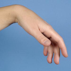Przyczyny problemów z nadgarstkiem