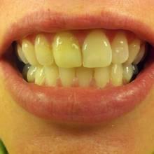 Skuteczne usuwanie przebarwień na zębach