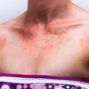 Przyczyny alergii słonecznej