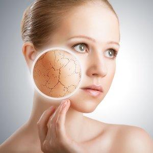 Dlaczego przesuszanie skóry jest złe?