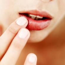 Jak chronić usta w czasie zimy?