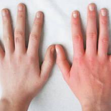 W jaki sposób pielęgnować dłonie i paznokcie?