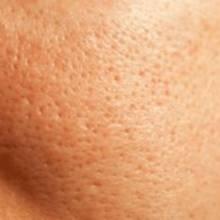 Sposoby zmniejszania porów na twarzy