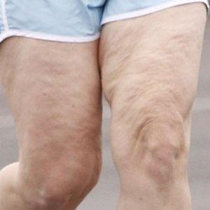 Jak szybko i skutecznie zwalczyć cellulit?