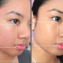 W jaki sposób zlikwidować przebarwienia skóry?