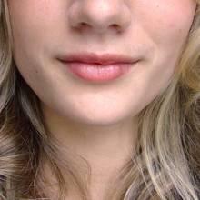 W jaki sposób pozbyć się zmarszczek wokół ust?