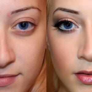 Rewolucja w makijażu i mezoterapii