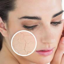 Naturalne sposoby na suchą skórę