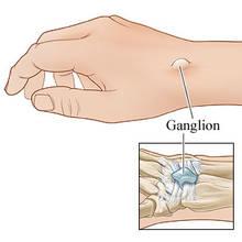 Jak postępować z ganglionem?