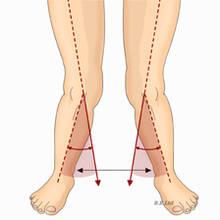 Jak radzić sobie z koślawymi kolanami?