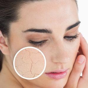 Jakie kosmetyki wybierać dla cery suchej i wrażliwej?