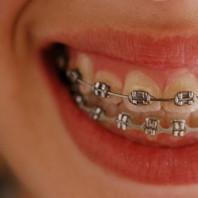 Zasady dbania o zęby z aparatem ortodontycznym