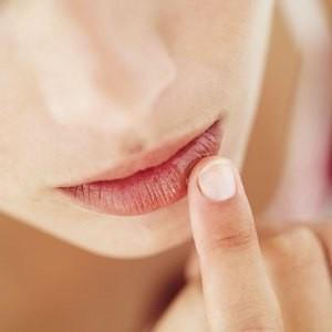 Sposoby na pękające kąciki ust