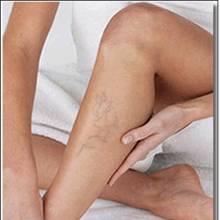 Domowe sposoby leczenia żylaków i obrzęków nóg