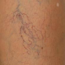 Jak walczyć z pajączkami na nogach?