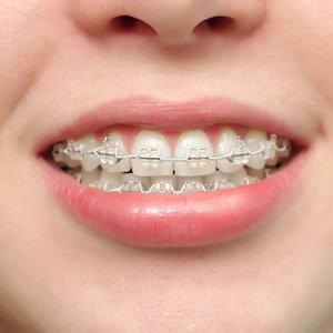 Prostowanie zębów bez aparatu