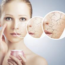 Jak powinno się leczyć atopowe zapalenie skóry?