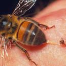 Jak sobie poradzić z wyjęciem żądła pszczoły?