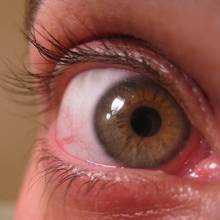 Dobre sposoby na suche oczy