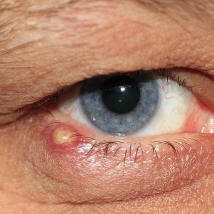 Sposoby leczenia jęczmienia na oku