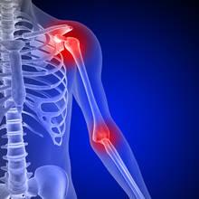 W jaki sposób zapobiegać bólom stawów?