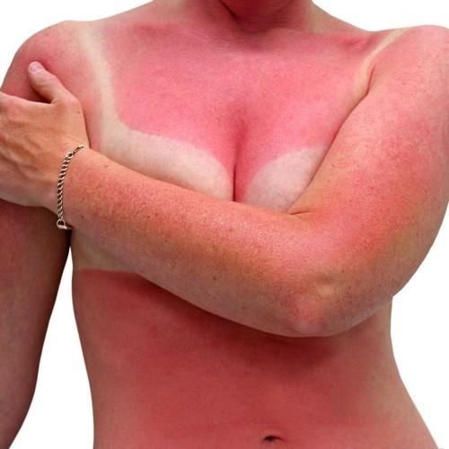 Jakie są objawy udaru słonecznego?