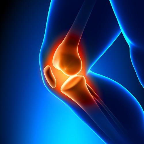 Jakie są naturalne sposoby na ból stawów kolanowych?