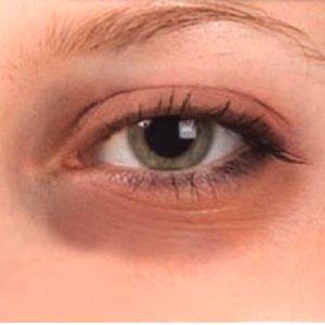 Jak skutecznie pozbyć się cieni pod oczami?