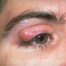 Jak wyleczyć jęczmień na oku?