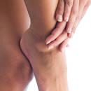 Jak zmniejszyć opuchliznę nóg domowymi sposobami?