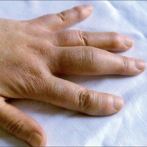 Co oznaczają opuchnięte palce rąk?