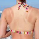 Jak odpowiednio leczyć poparzenia słoneczne?
