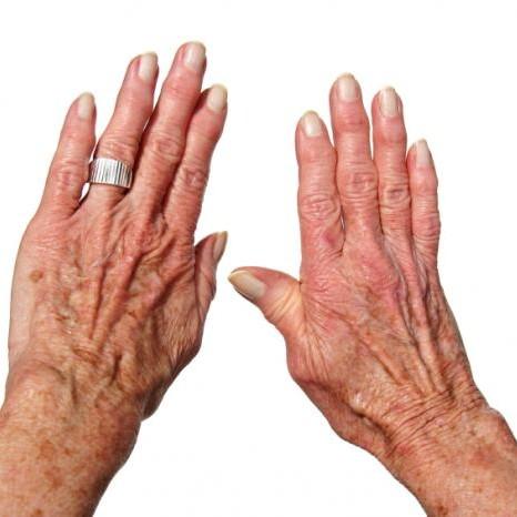 Domowe sposoby na reumatyzm