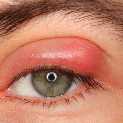 Jak wyleczyć jęczmień na oku domowym sposobem?