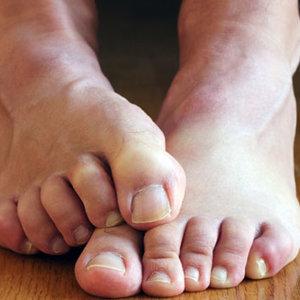 Przyczyny zespołu niespokojnych nóg