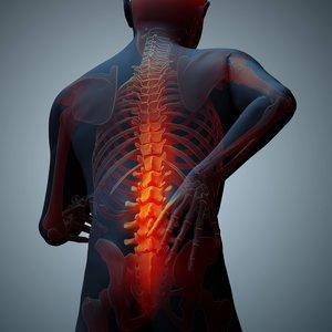 Bóle kości