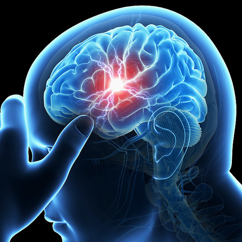 Jak chronić się przed udarem mózgu?