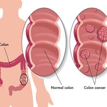 Jakie są symptomy raka jelita grubego?