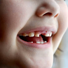 Jakie są przyczyny i objawy zębiaka?