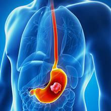 Sposoby na zapobieganie rakowi jelita grubego